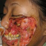 Alarming Flesh Eating Bacteria is Destroying Faces 4 150x150 Alarming Flesh Eating Bacteria is Destroying Faces